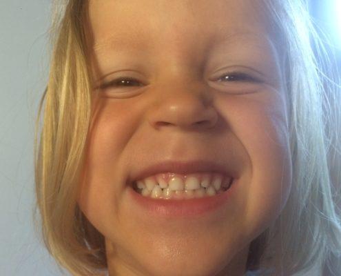 mliečne zuby